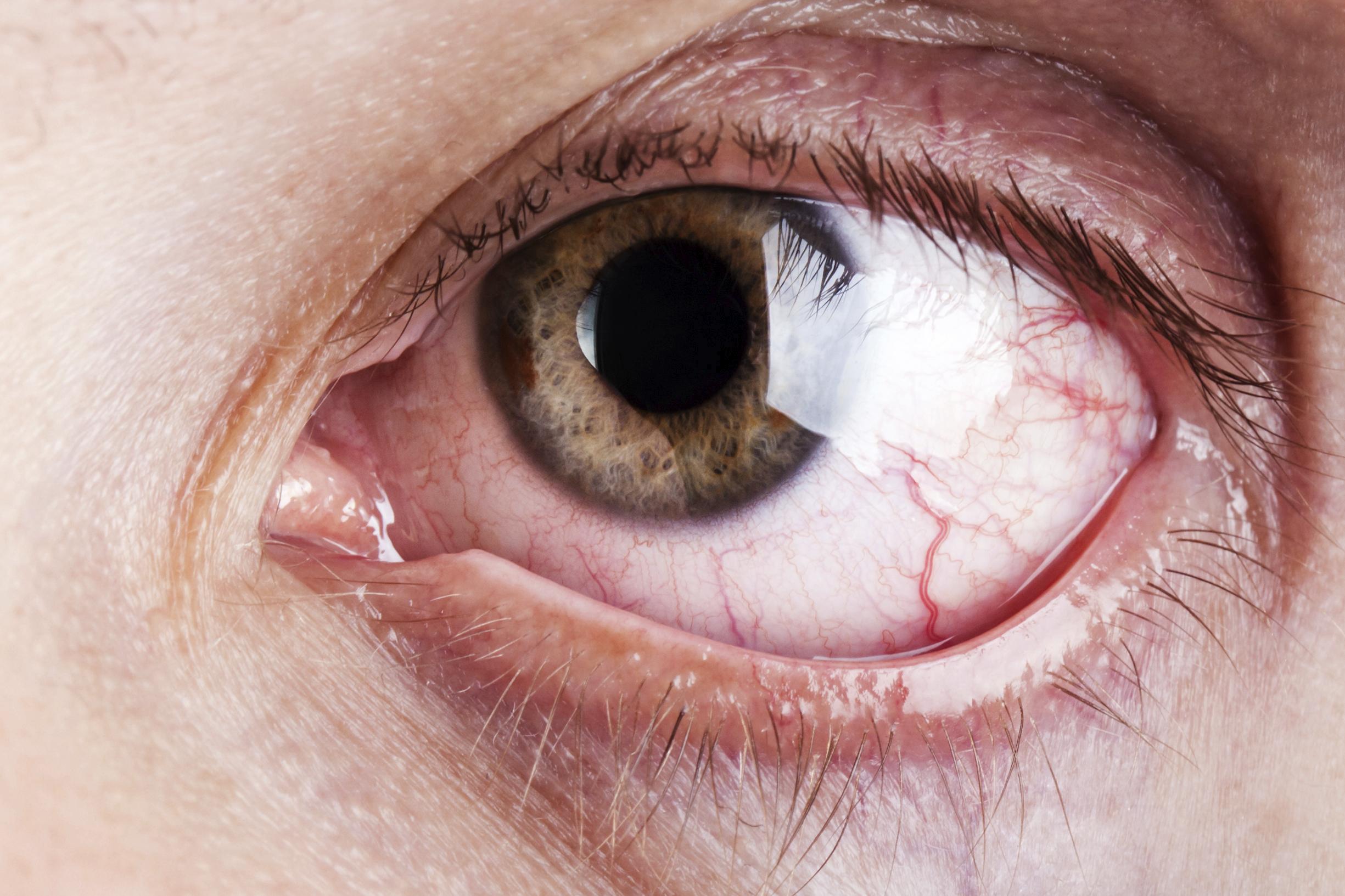 Malasanità Oculistica: ottenuto risarcimento danni di 510 mila €